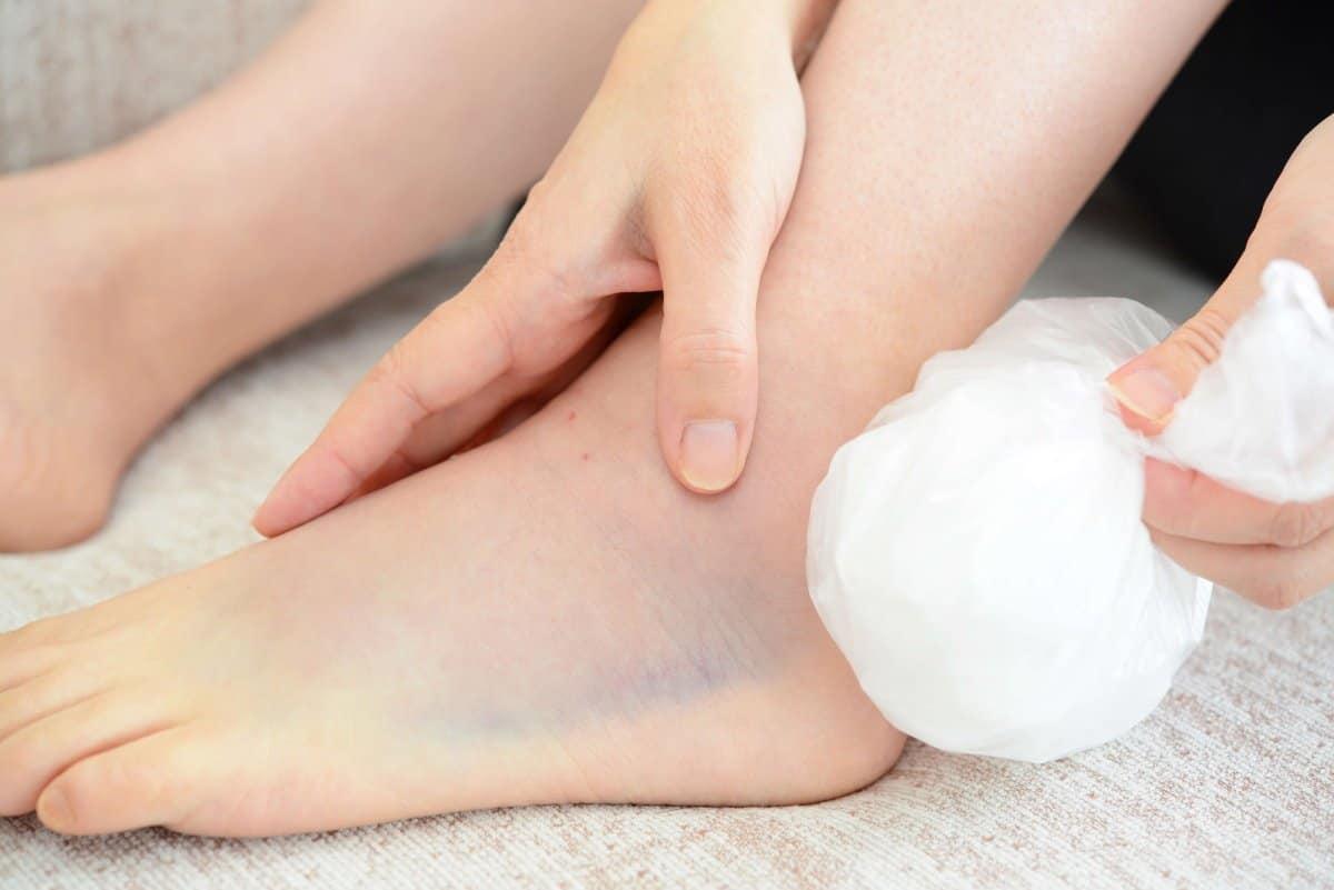Chườm đá có thể giảm đi sự đau đớn ở chân